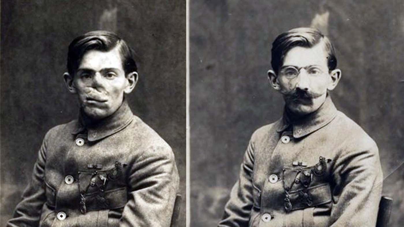 Anna Coleman Ladd faire des masques portés par les soldats français avec des visages mutilés, 1918